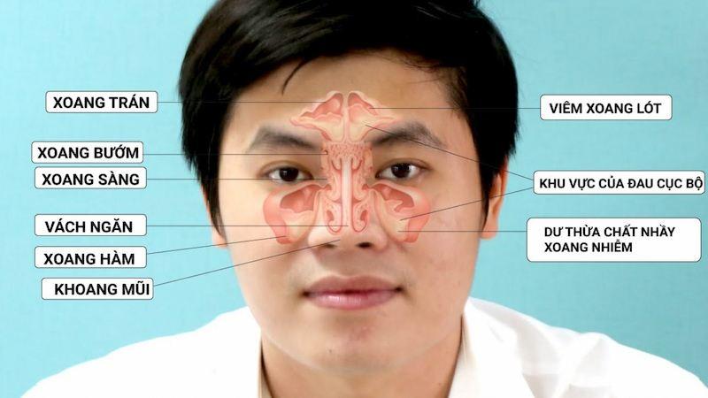 Vị trí các xoang thường bị viêm ở mũi