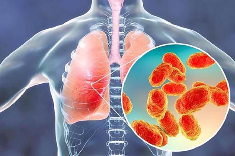 Viêm xoang bội nhiễm là tình trạng bệnh nặng, có thể gây ra nhiều biến chứng nguy hiểm