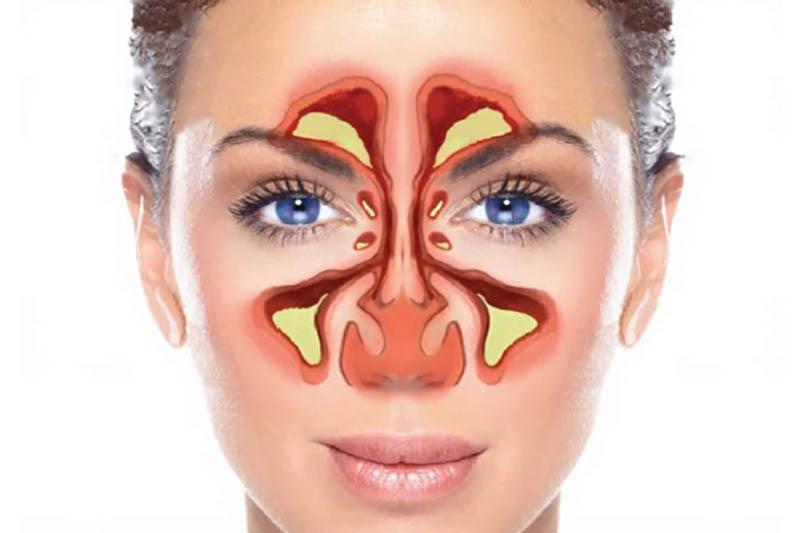 Viêm xoang hàm là bệnh gì? Cách điều trị tốt nhất