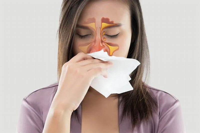 Viêm xoang phù nề do xung huyết và tích tụ dịch trong hốc xoang gây ra