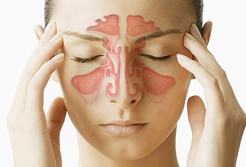 Viêm xoang sàng: Nguyên nhân, dấu hiệu và hướng điều trị