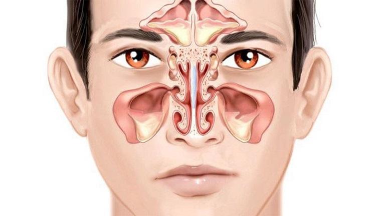 Viêm xoang mạn tính là bệnh lý biến thể từ viêm xoang cấp tính